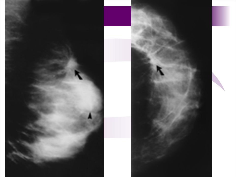 Figure 1. (a) Mediolateral oblique mammogram of the left breast shows a circumscribed mass (arrowhead) and an unsuspected spiculated lesion superior to it (arrow).