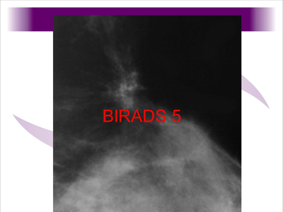 BIRADS 5 DIAGNOSIS: Tubular carcinoma and fibroadenoma.
