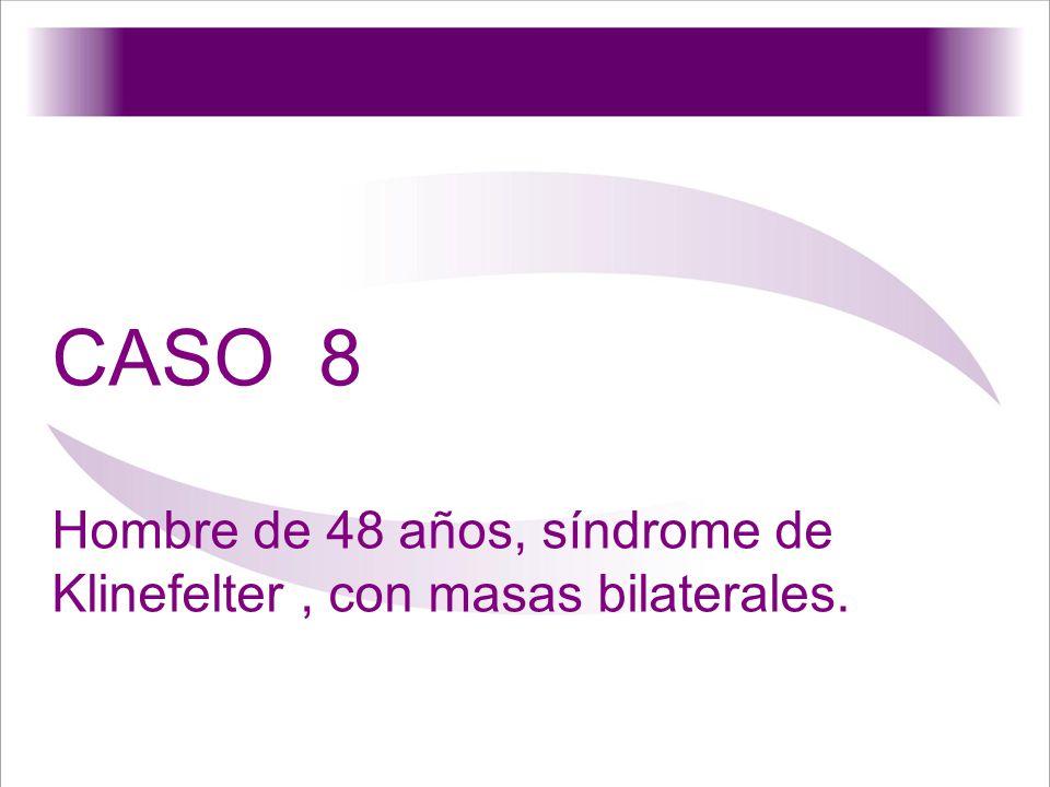 CASO 8 Hombre de 48 años, síndrome de