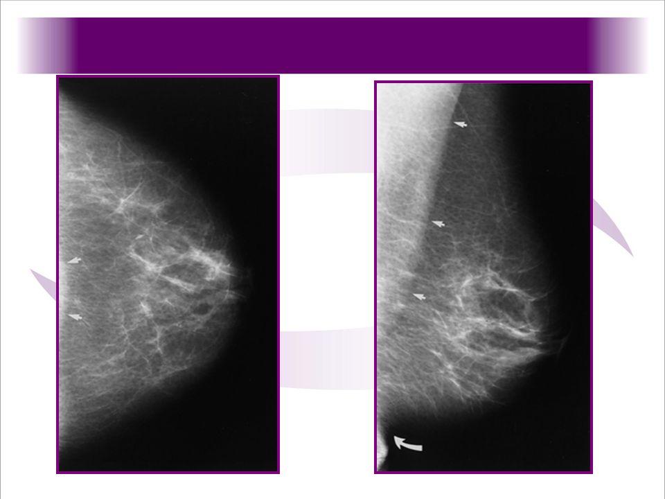 Proyeccion craneocaudal de la mama las flechas señalan el musculo pectoral, lo que indica adecuada visualizaicion del tejido mamario
