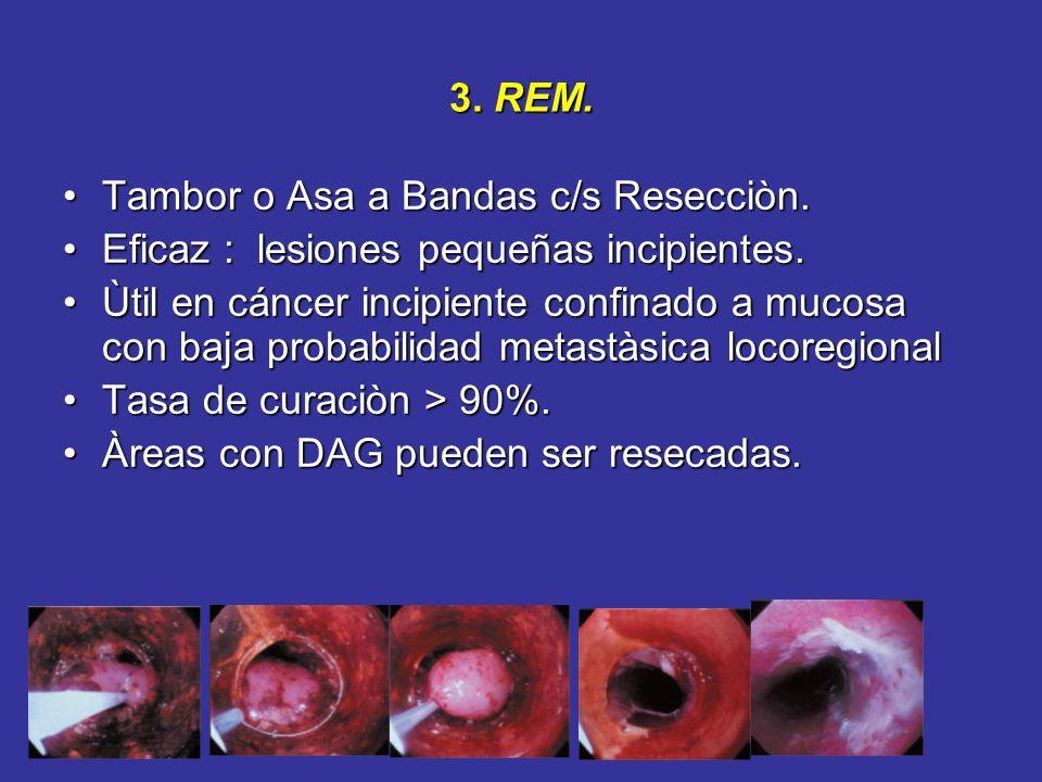 3. REM. Tambor o Asa a Bandas c/s Resecciòn. Eficaz : lesiones pequeñas incipientes.