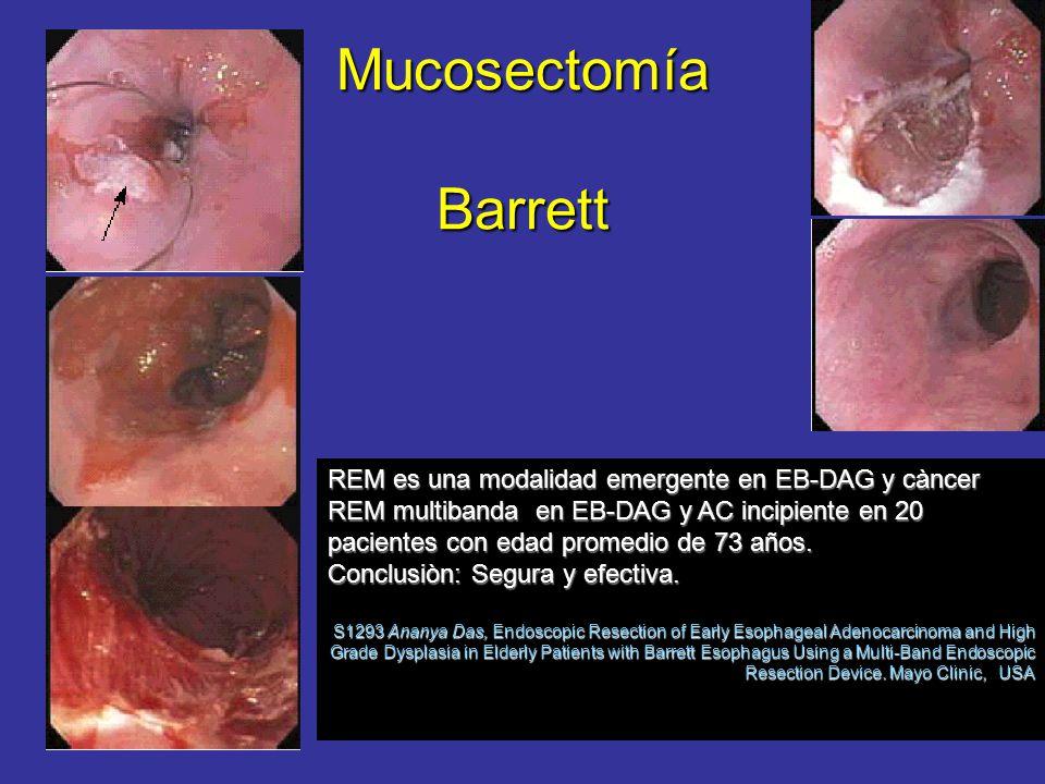 Mucosectomía Barrett REM es una modalidad emergente en EB-DAG y càncer