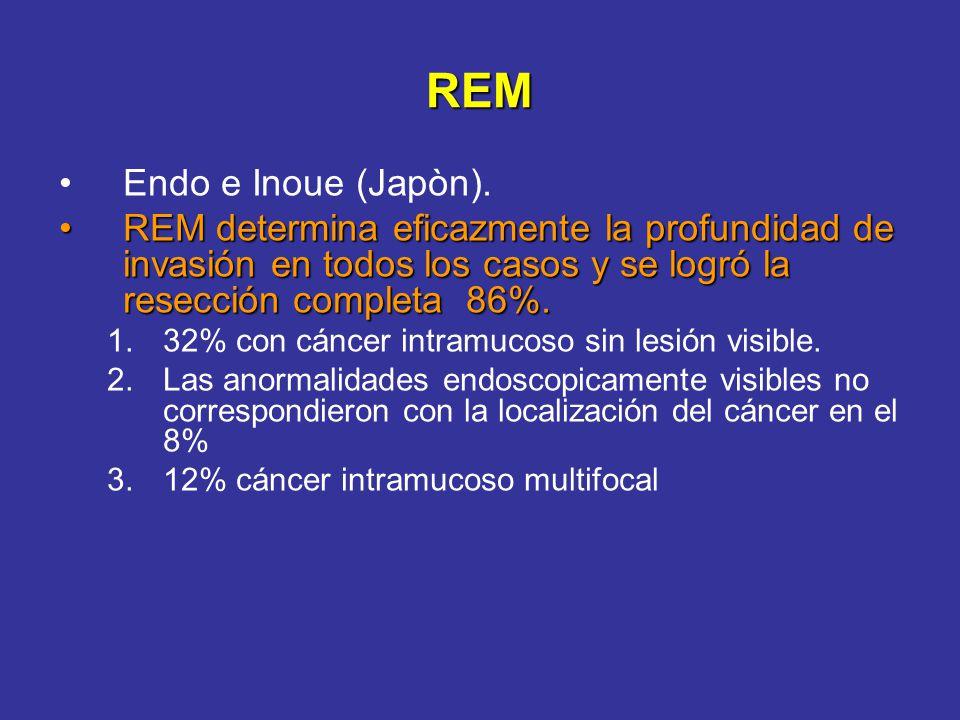 REM Endo e Inoue (Japòn).