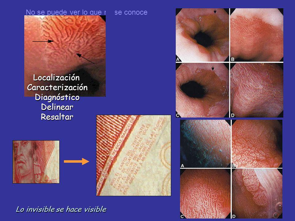 Localización Caracterización Diagnóstico Delinear Resaltar