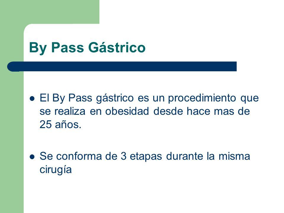 By Pass Gástrico El By Pass gástrico es un procedimiento que se realiza en obesidad desde hace mas de 25 años.