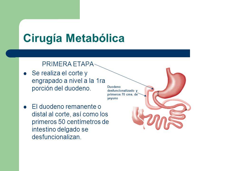 Cirugía Metabólica PRIMERA ETAPA