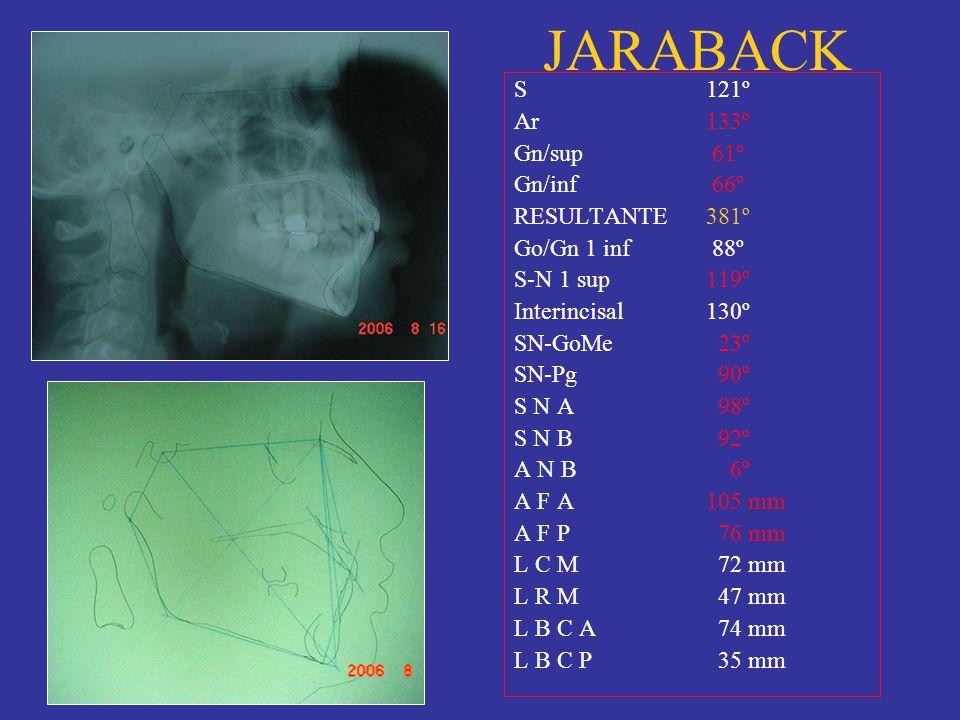 JARABACK S 121º Ar 133º Gn/sup 61º Gn/inf 66º RESULTANTE 381º