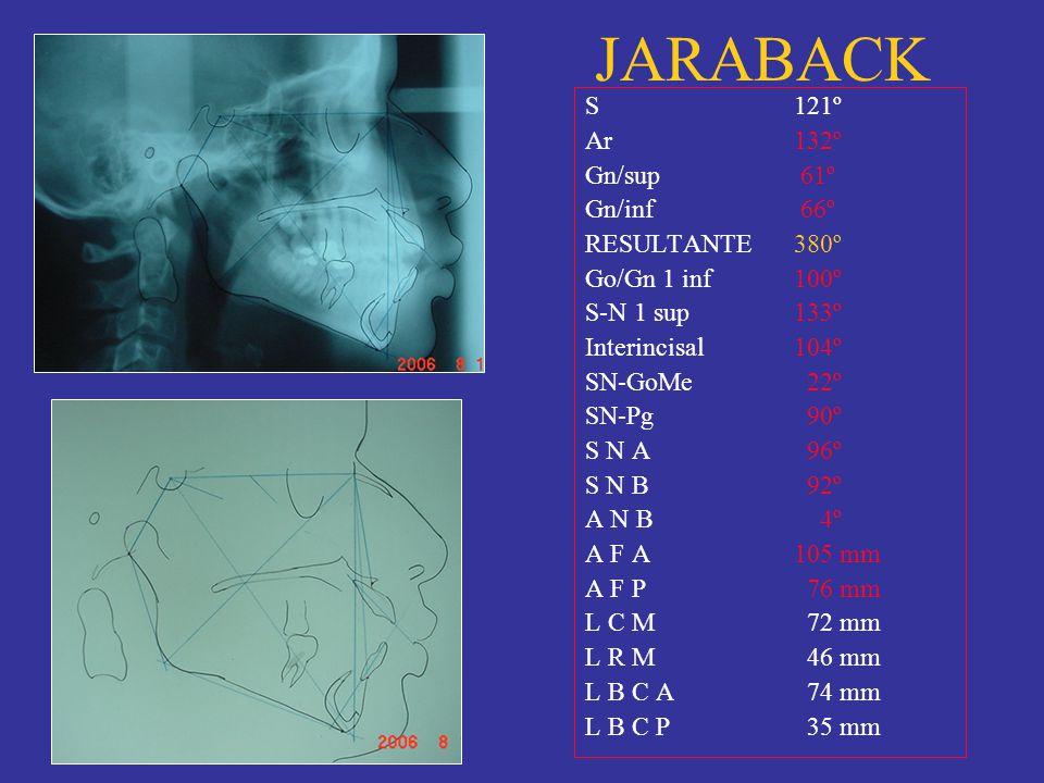 JARABACK S 121º Ar 132º Gn/sup 61º Gn/inf 66º RESULTANTE 380º