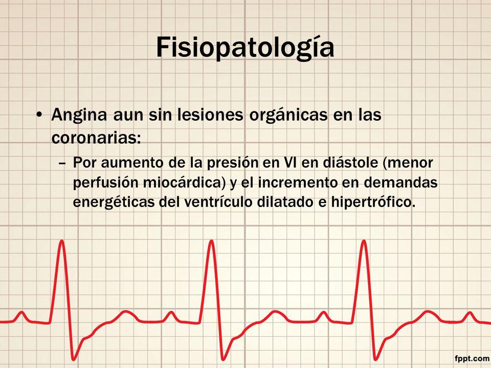 Fisiopatología Angina aun sin lesiones orgánicas en las coronarias: