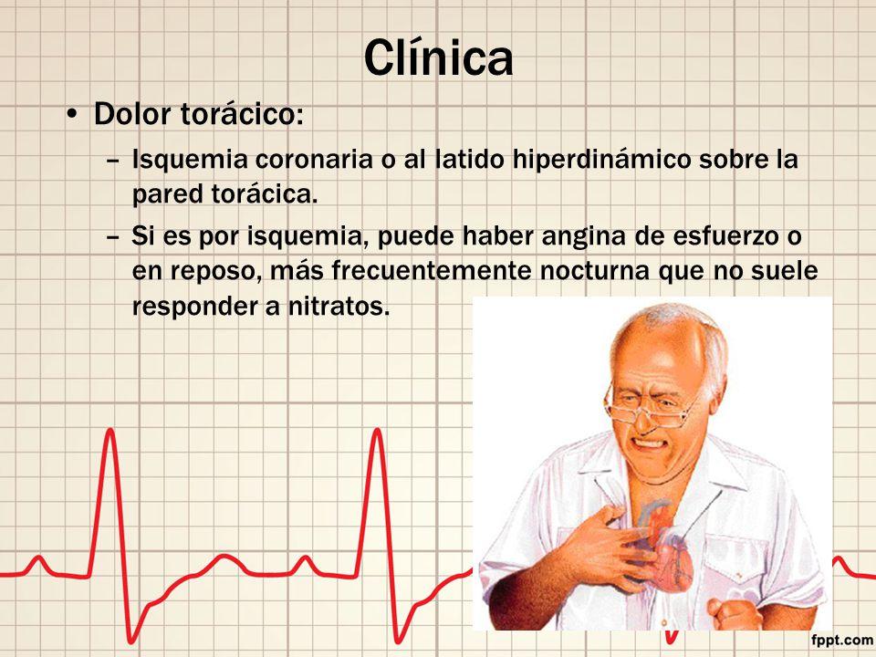 Clínica Dolor torácico: