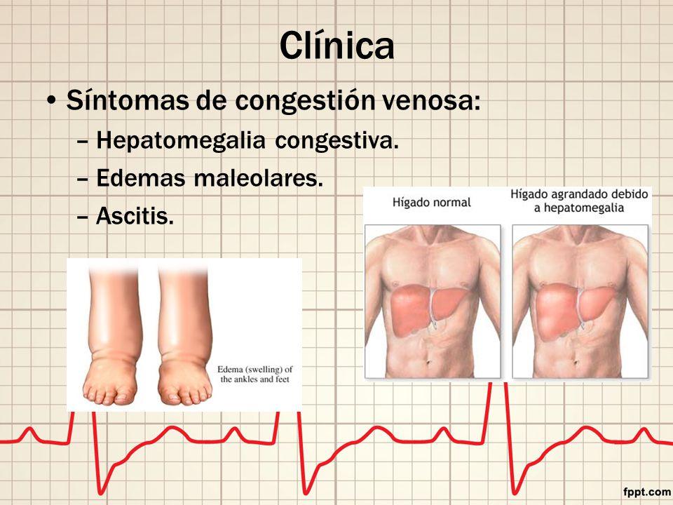 Clínica Síntomas de congestión venosa: Hepatomegalia congestiva.