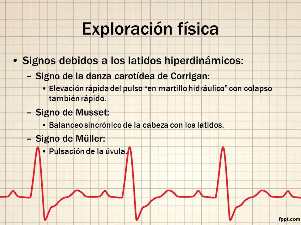 Exploración física Signos debidos a los latidos hiperdinámicos: