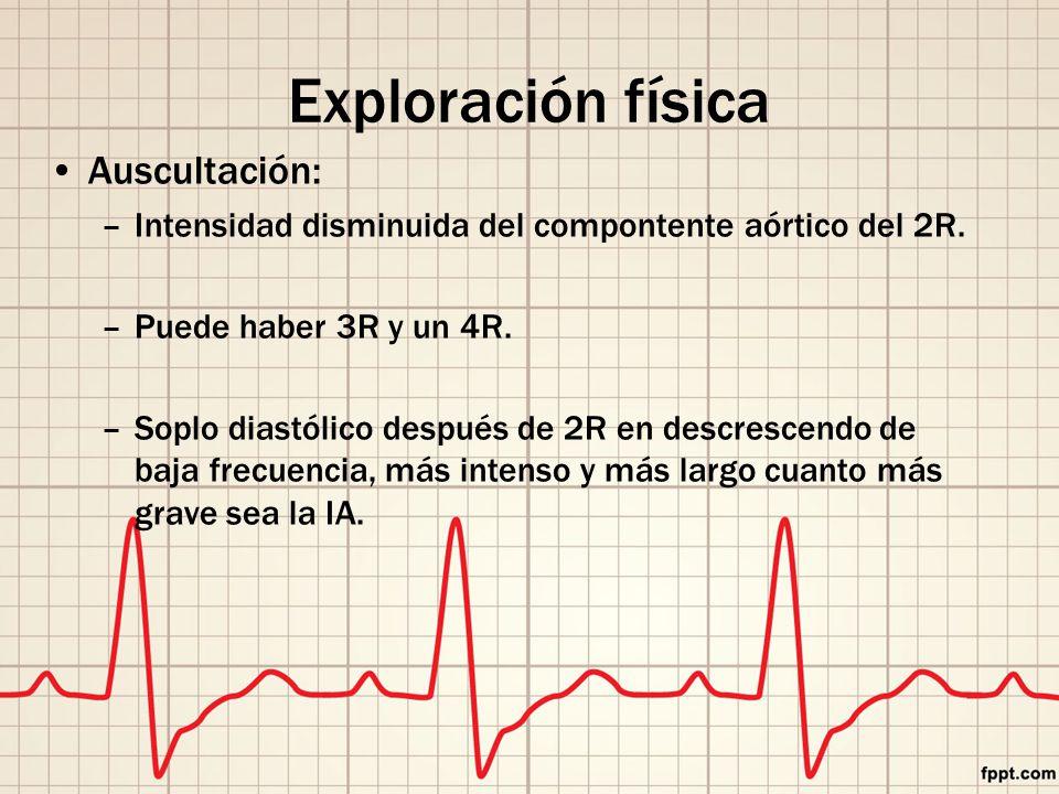 Exploración física Auscultación: