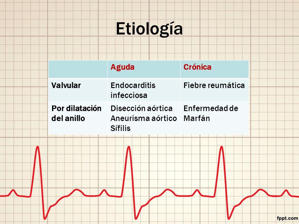 Etiología Aguda Crónica Valvular Endocarditis infecciosa