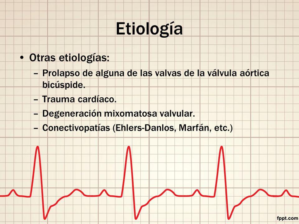 Etiología Otras etiologías: