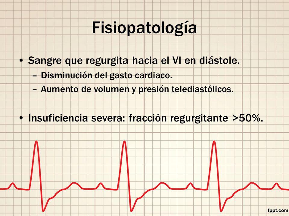 Fisiopatología Sangre que regurgita hacia el VI en diástole.