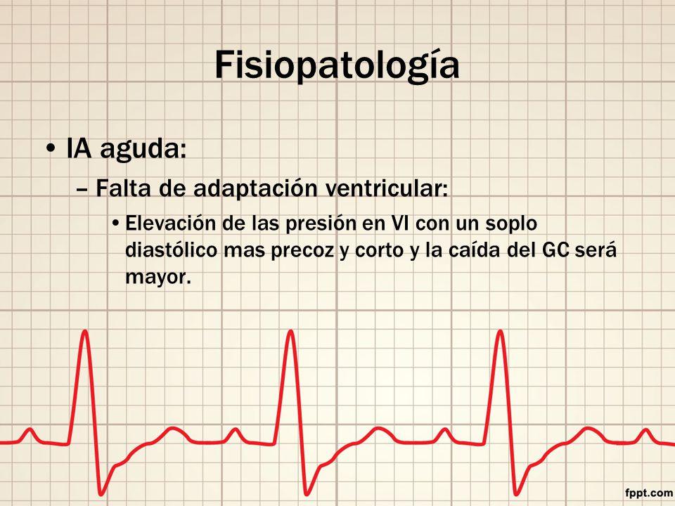 Fisiopatología IA aguda: Falta de adaptación ventricular: