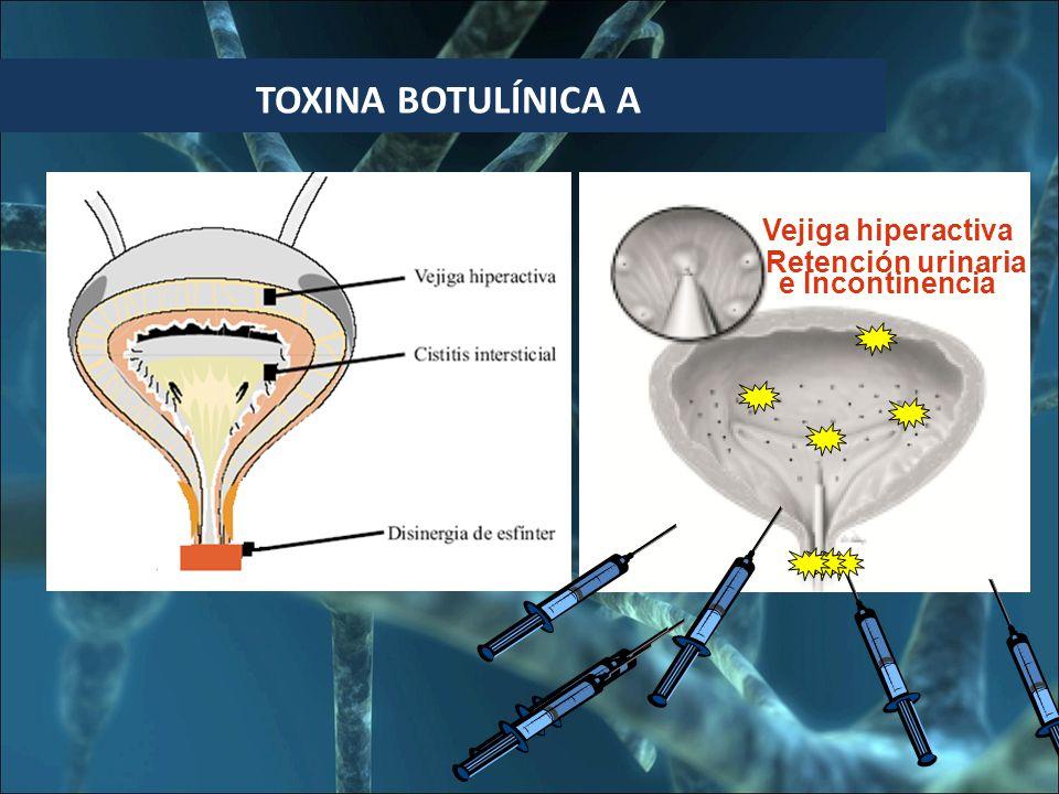 BOTULINA TOXINA BOTULÍNICA A