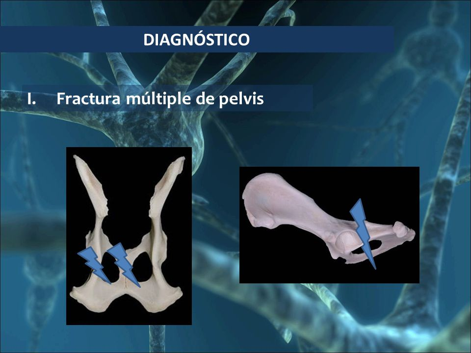 DIAGNÓSTICO Fractura múltiple de pelvis