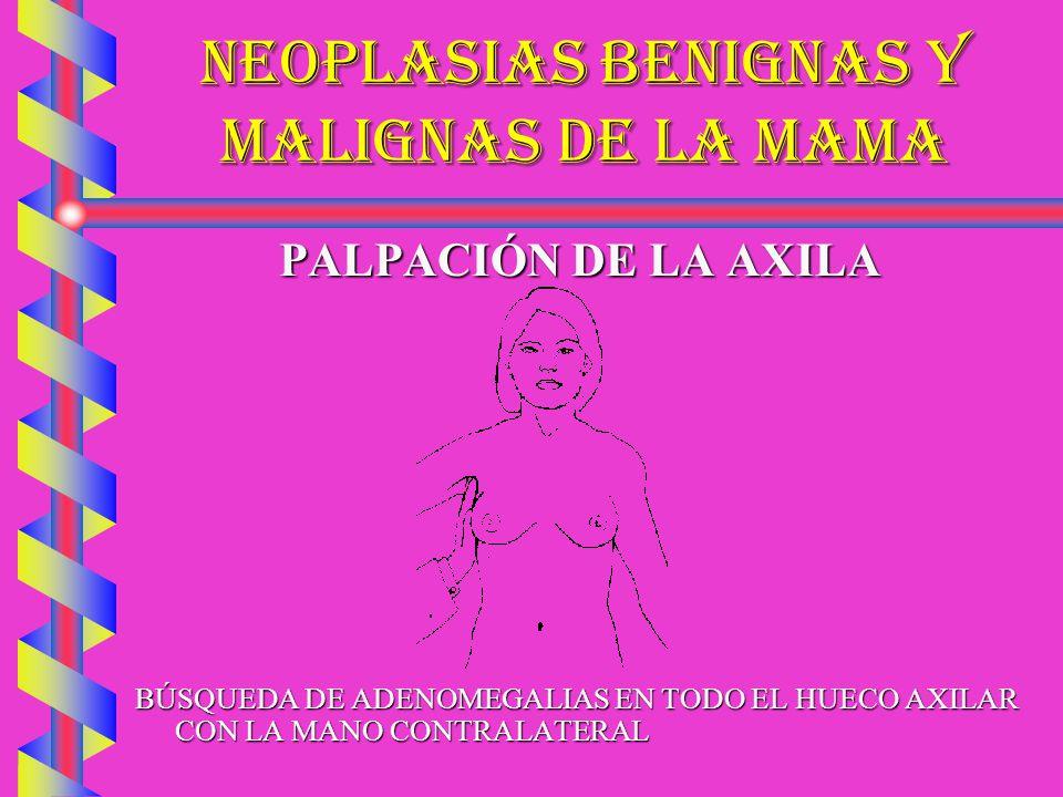 NEOPLASIAS BENIGNAS Y MALIGNAS DE LA MAMA