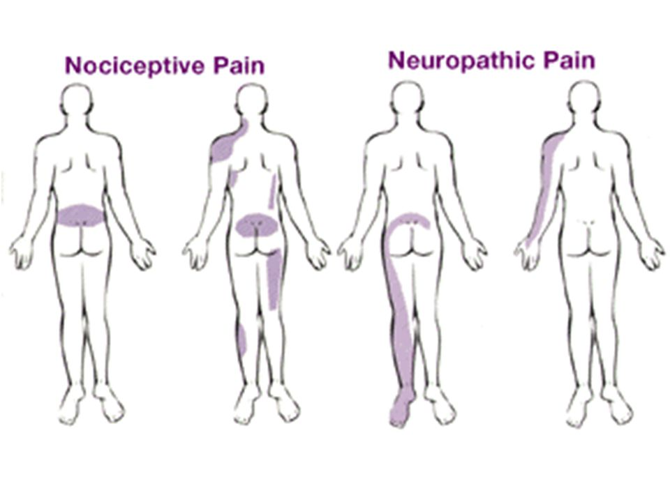 Los tipos diferentes de dolor