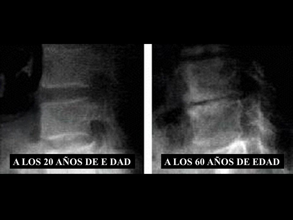 A LOS 20 AÑOS DE E DAD A LOS 60 AÑOS DE EDAD