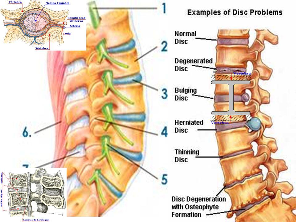 Desde el punto de vista biomecánico y fisiopatológico, la columna se sostiene entre sus diversas estructuras anatómicas, los cuerpos vertebrales, los discos, ligamentos y músculos de manera mas o menos homogénea, pero cuando por algun problema postura, asimetría, sobrecarga crónica, sobre peso, etc éste peso recae sobre alguna zona específica, esto puede desencadenar o acelerar un problema degenerativo del anillo fibroso, del cuerpo vertebral y el consiguiente cuadro doloroso