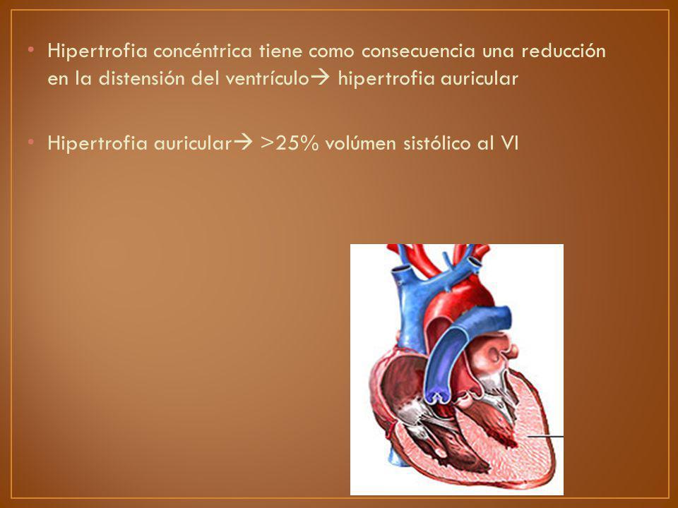 Hipertrofia concéntrica tiene como consecuencia una reducción en la distensión del ventrículo hipertrofia auricular