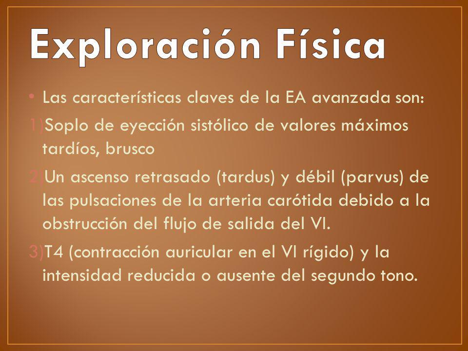 Exploración Física Las características claves de la EA avanzada son: