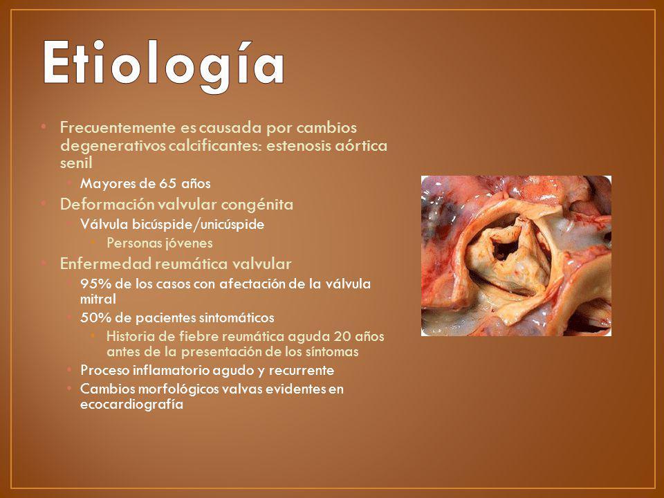 Etiología Frecuentemente es causada por cambios degenerativos calcificantes: estenosis aórtica senil.
