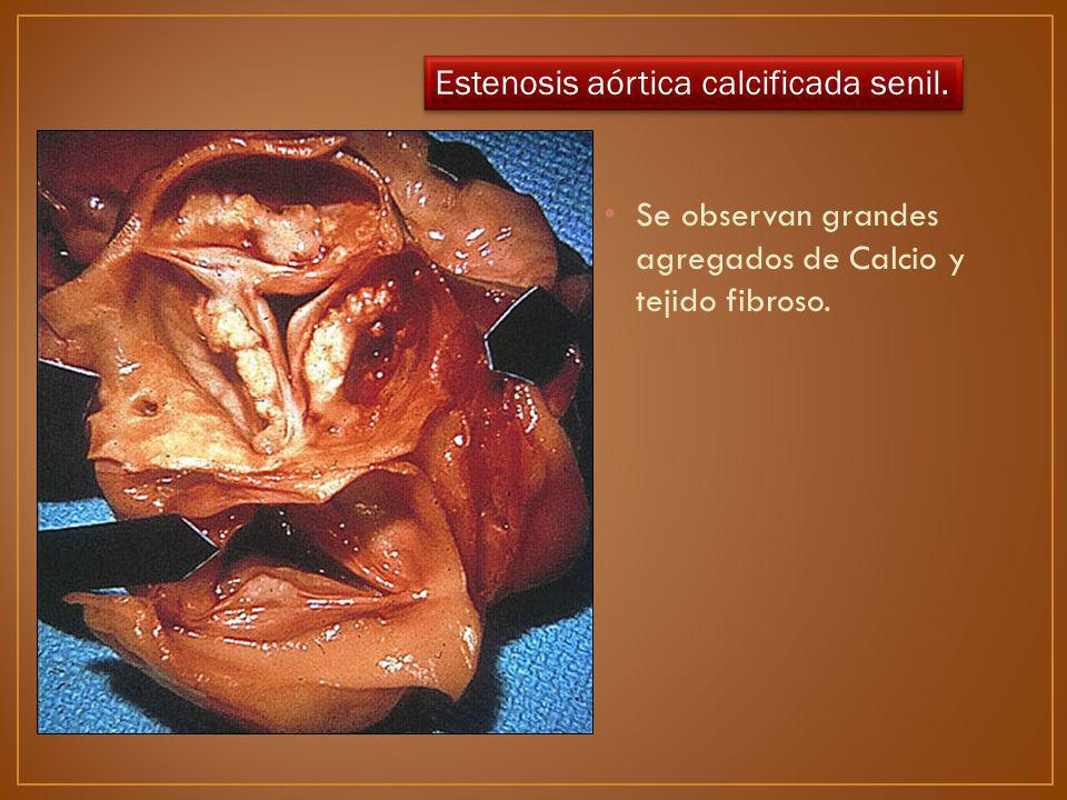 Estenosis aórtica calcificada senil.