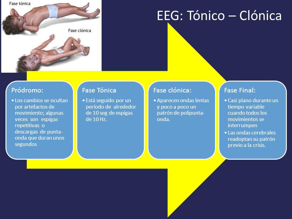 EEG: Tónico – Clónica Pródromo: Fase Tónica Fase clónica: Fase Final: