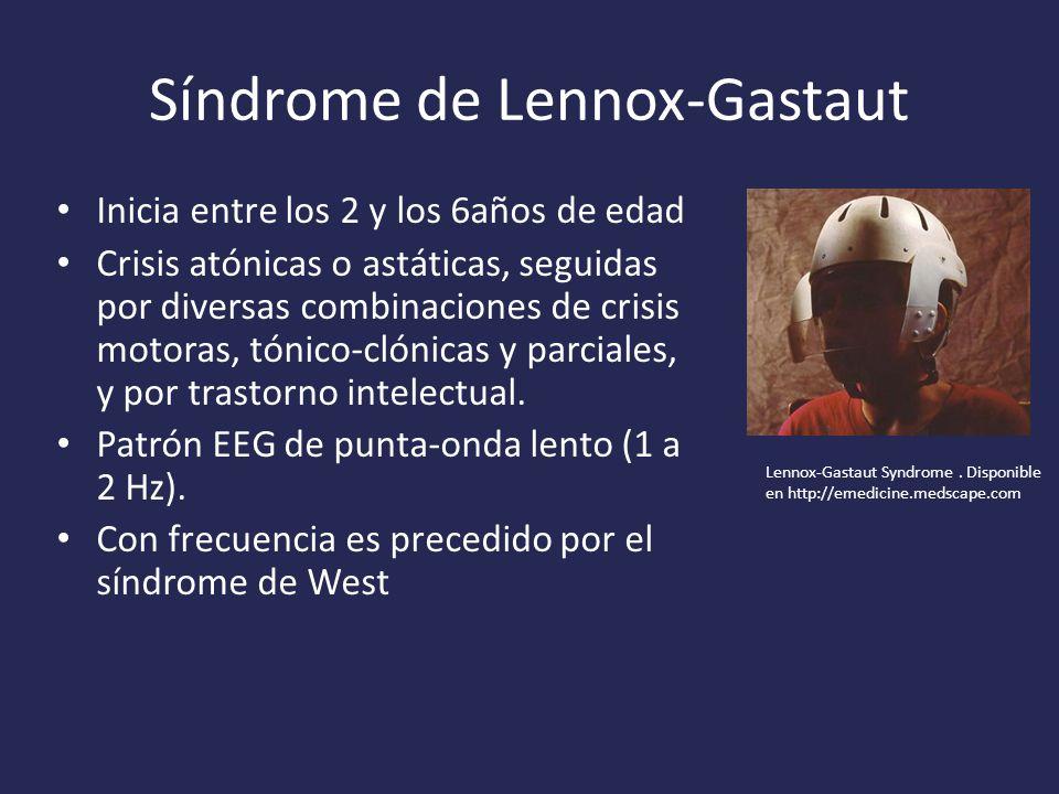 Síndrome de Lennox-Gastaut
