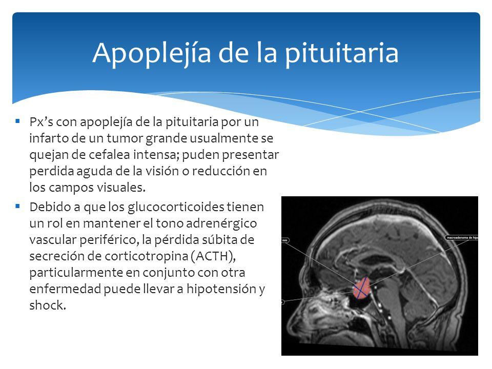 Apoplejía de la pituitaria