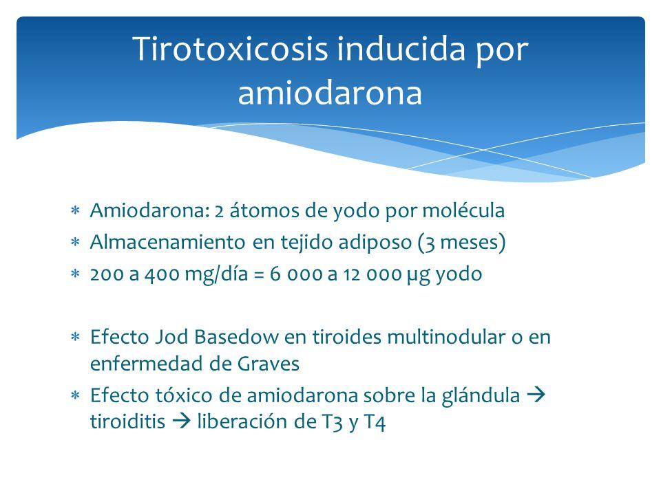 Tirotoxicosis inducida por amiodarona