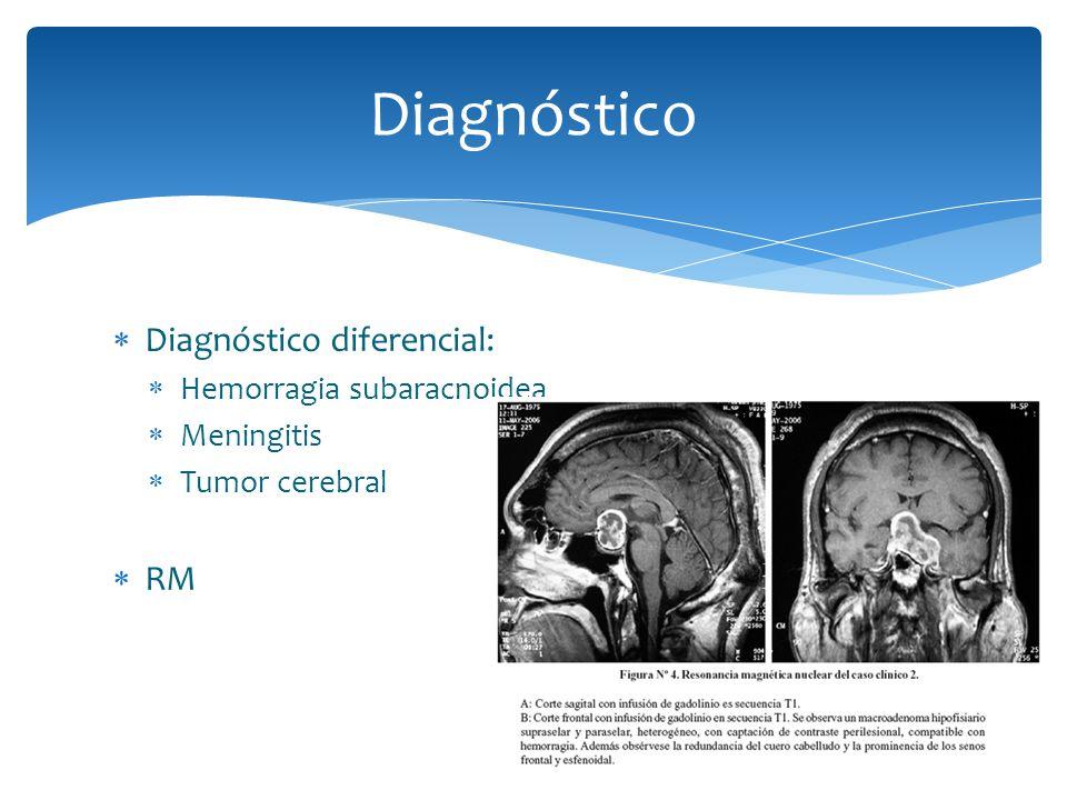 Diagnóstico Diagnóstico diferencial: RM Hemorragia subaracnoidea