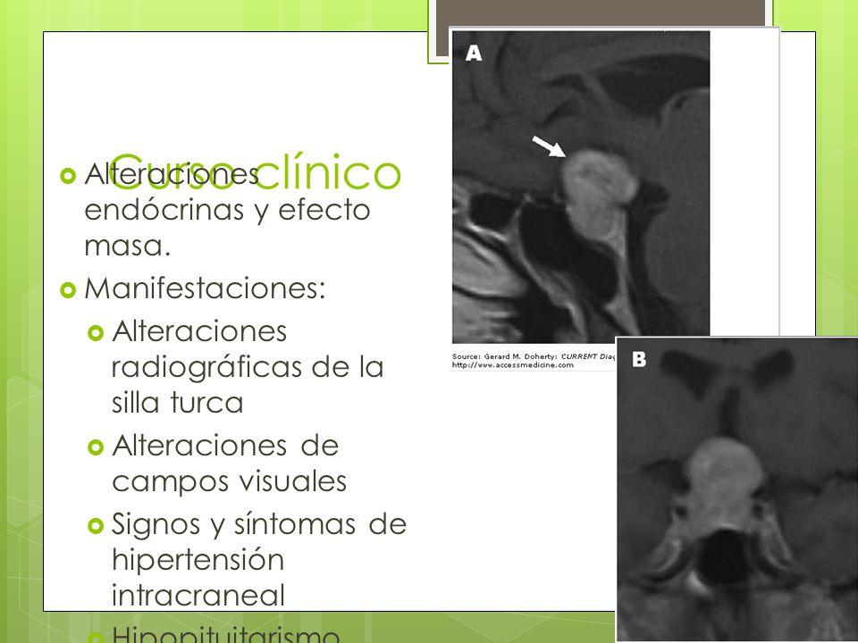 Curso clínico Alteraciones endócrinas y efecto masa. Manifestaciones: