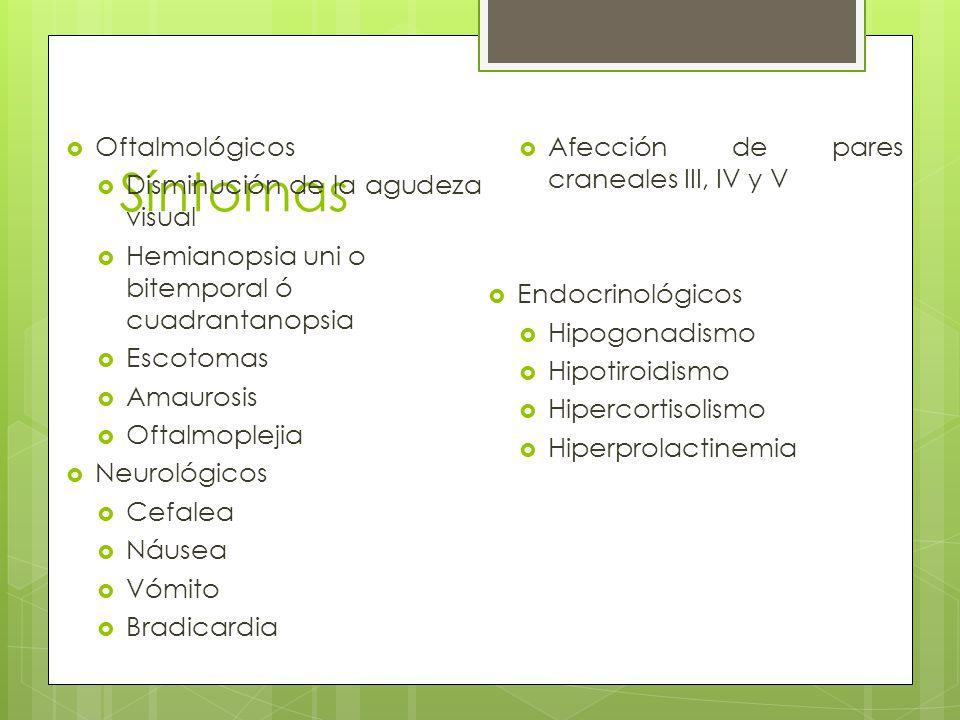 Síntomas Oftalmológicos Afección de pares craneales III, IV y V