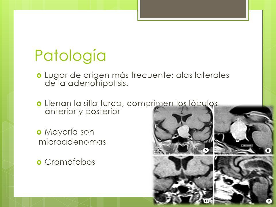 Patología Lugar de origen más frecuente: alas laterales de la adenohipofisis. Llenan la silla turca, comprimen los lóbulos anterior y posterior.