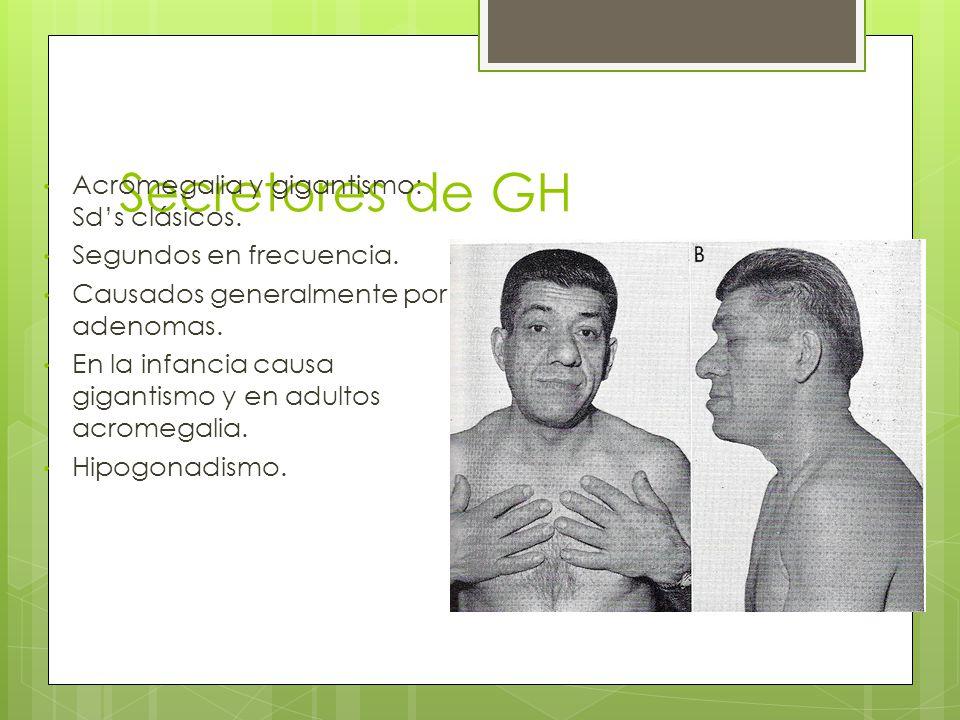 Secretores de GH Acromegalia y gigantismo: Sd's clásicos.