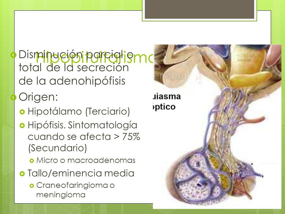 Hipopituitarismo Disminución parcial o total de la secreción de la adenohipófisis. Origen: Hipotálamo (Terciario)