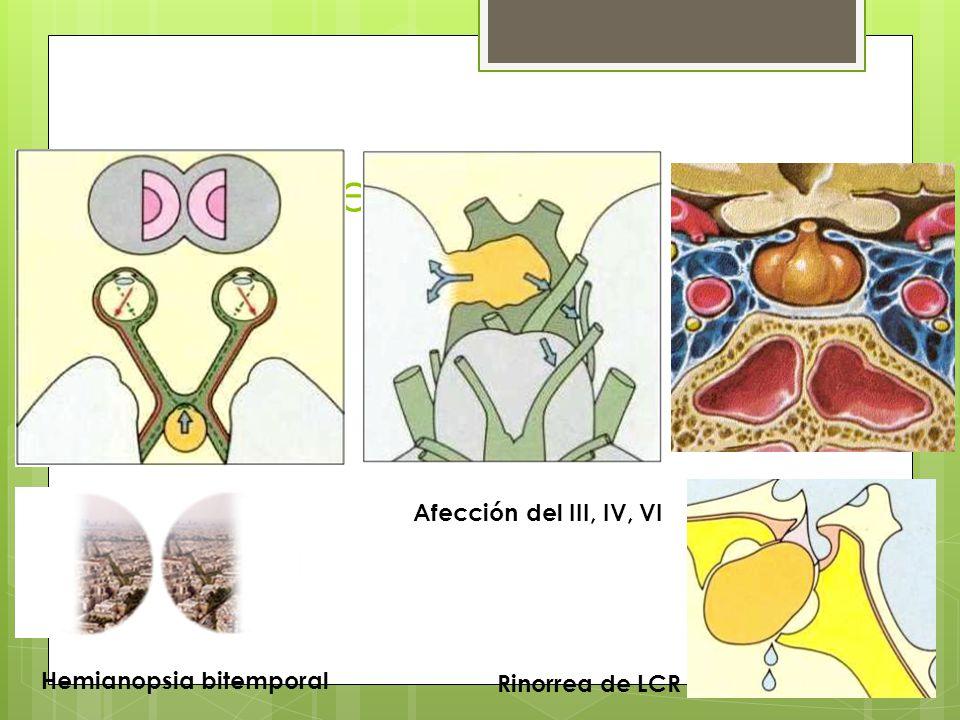 Efecto de masa Afección del III, IV, VI Hemianopsia bitemporal