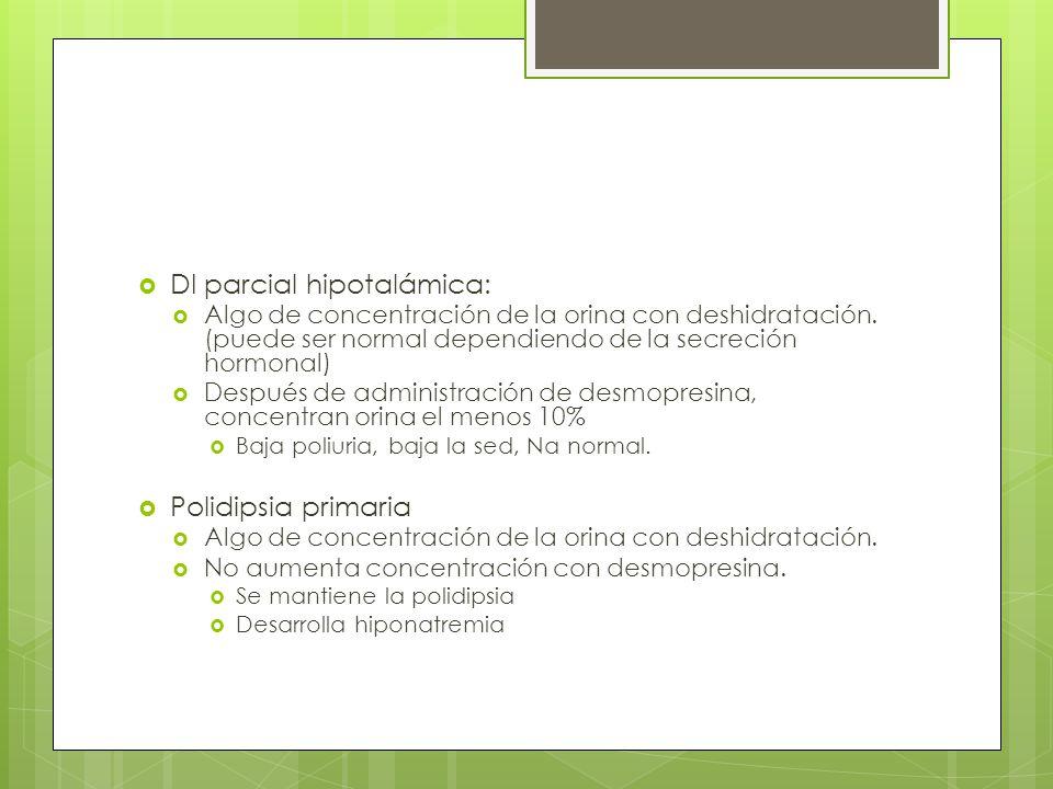 DI parcial hipotalámica: