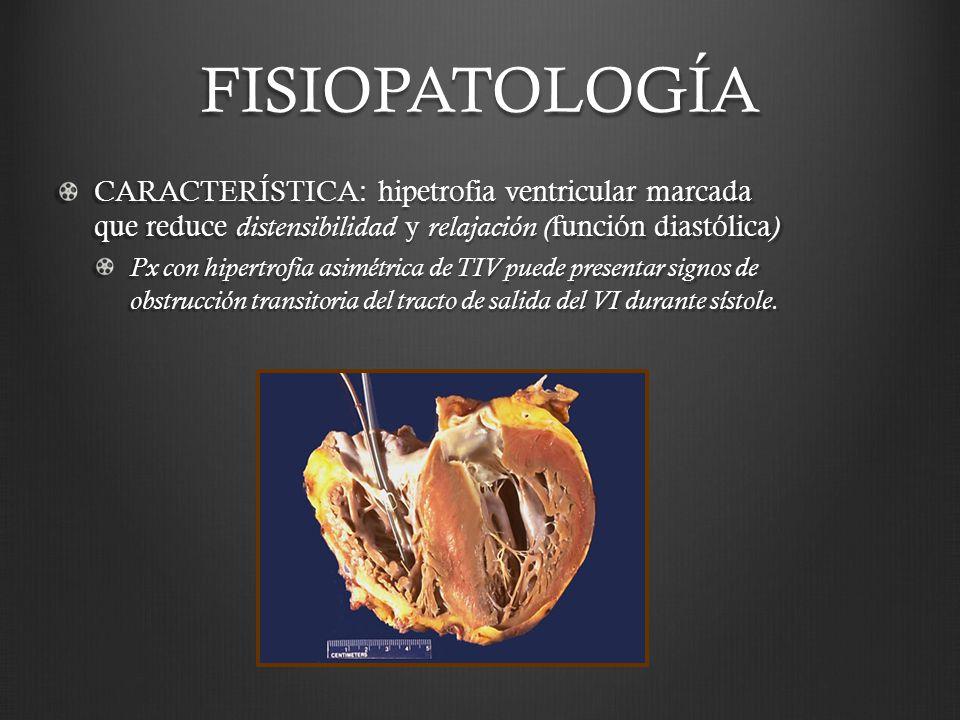 FISIOPATOLOGÍA CARACTERÍSTICA: hipetrofia ventricular marcada que reduce distensibilidad y relajación (función diastólica)