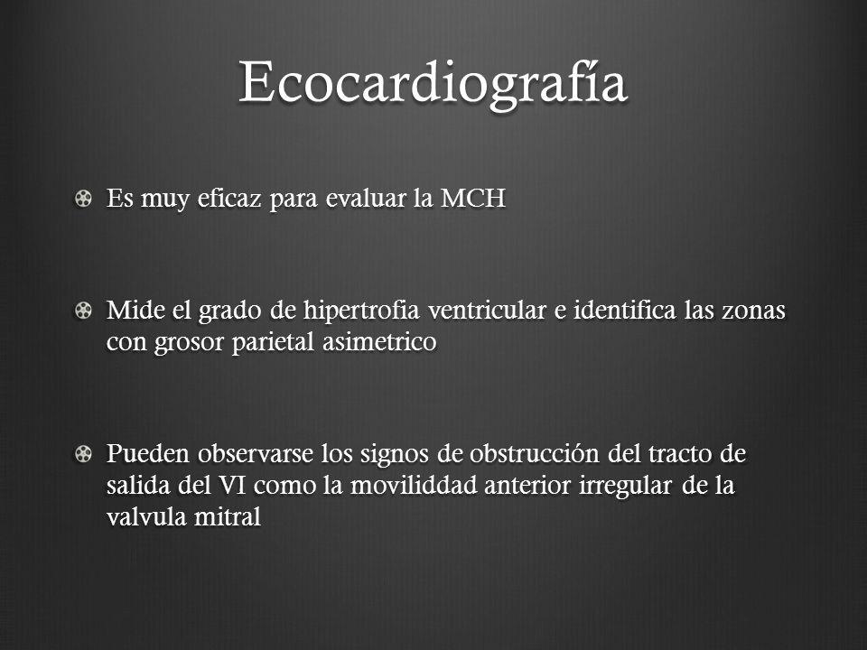 Ecocardiografía Es muy eficaz para evaluar la MCH