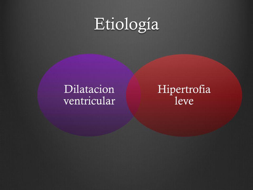 Dilatacion ventricular