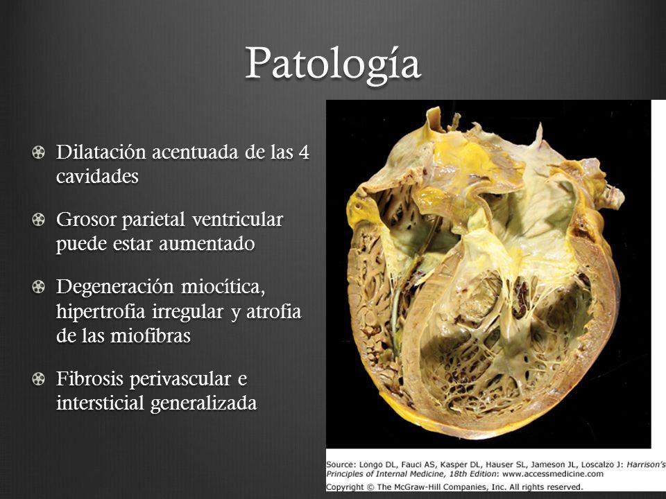 Patología Dilatación acentuada de las 4 cavidades