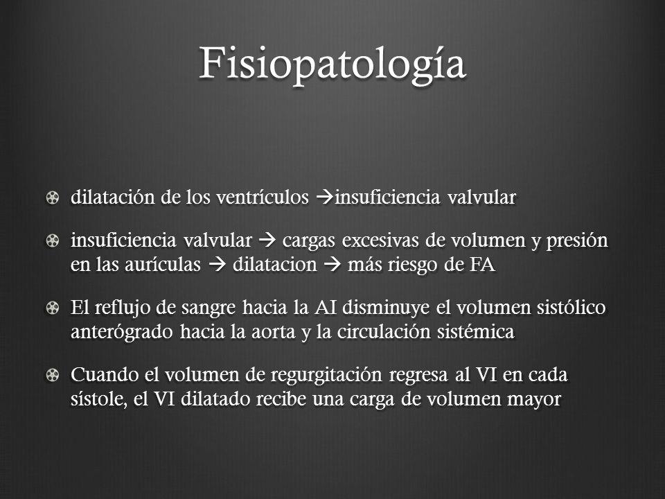Fisiopatología dilatación de los ventrículos insuficiencia valvular