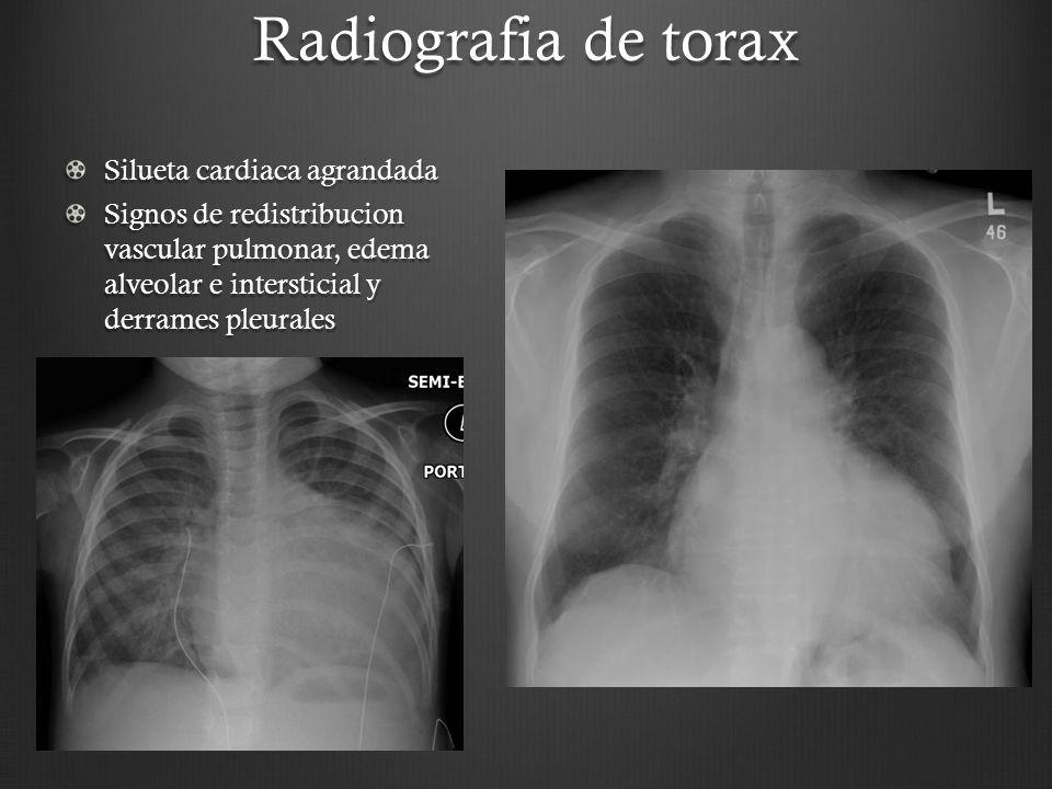 Radiografia de torax Silueta cardiaca agrandada