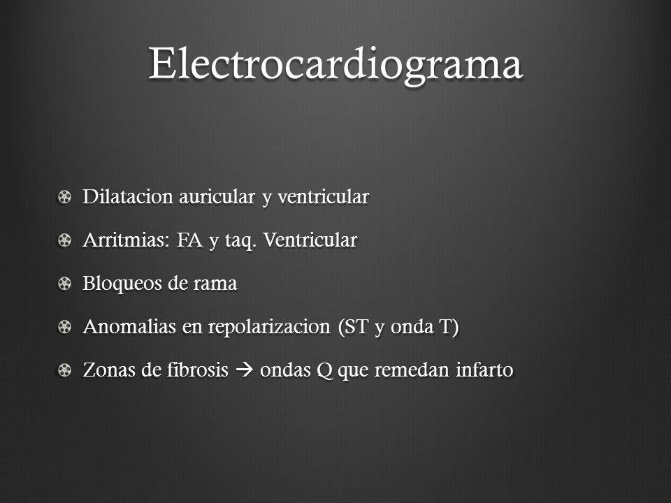 Electrocardiograma Dilatacion auricular y ventricular